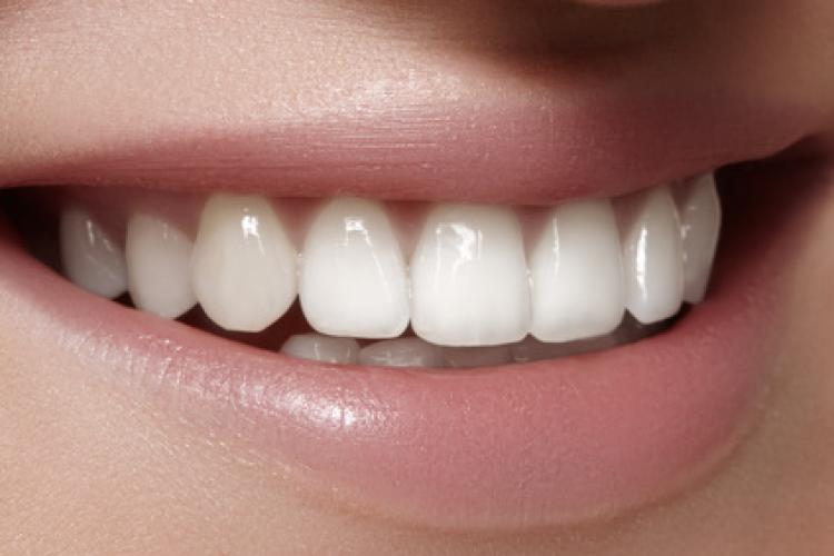 Zahnersatz in Zahnfarbe